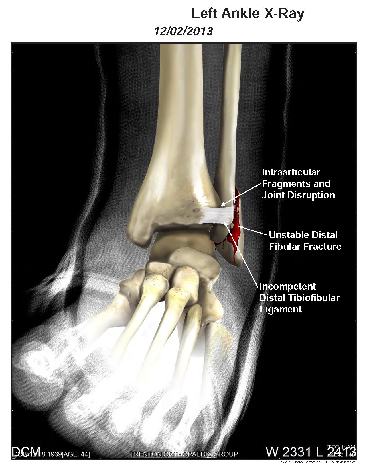 Medical Illustration Samples_Page_04